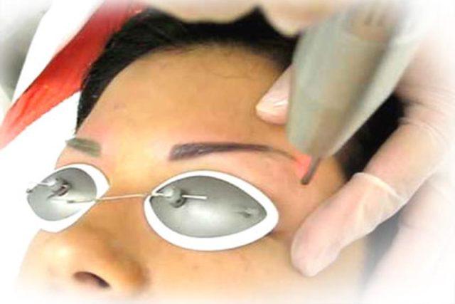 Отзывы о лазерном удалении татуажа бровей. Как проходит удаление